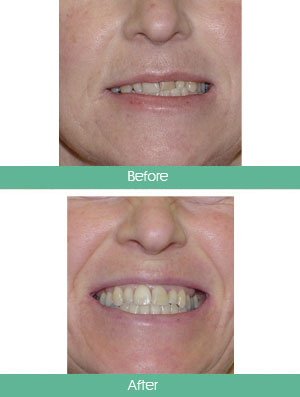 Treatment Results Wexford Orthodontics